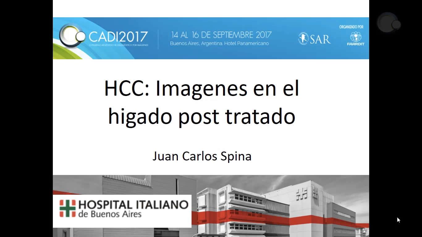 HCC: Imágenes en el hígado post tratado
