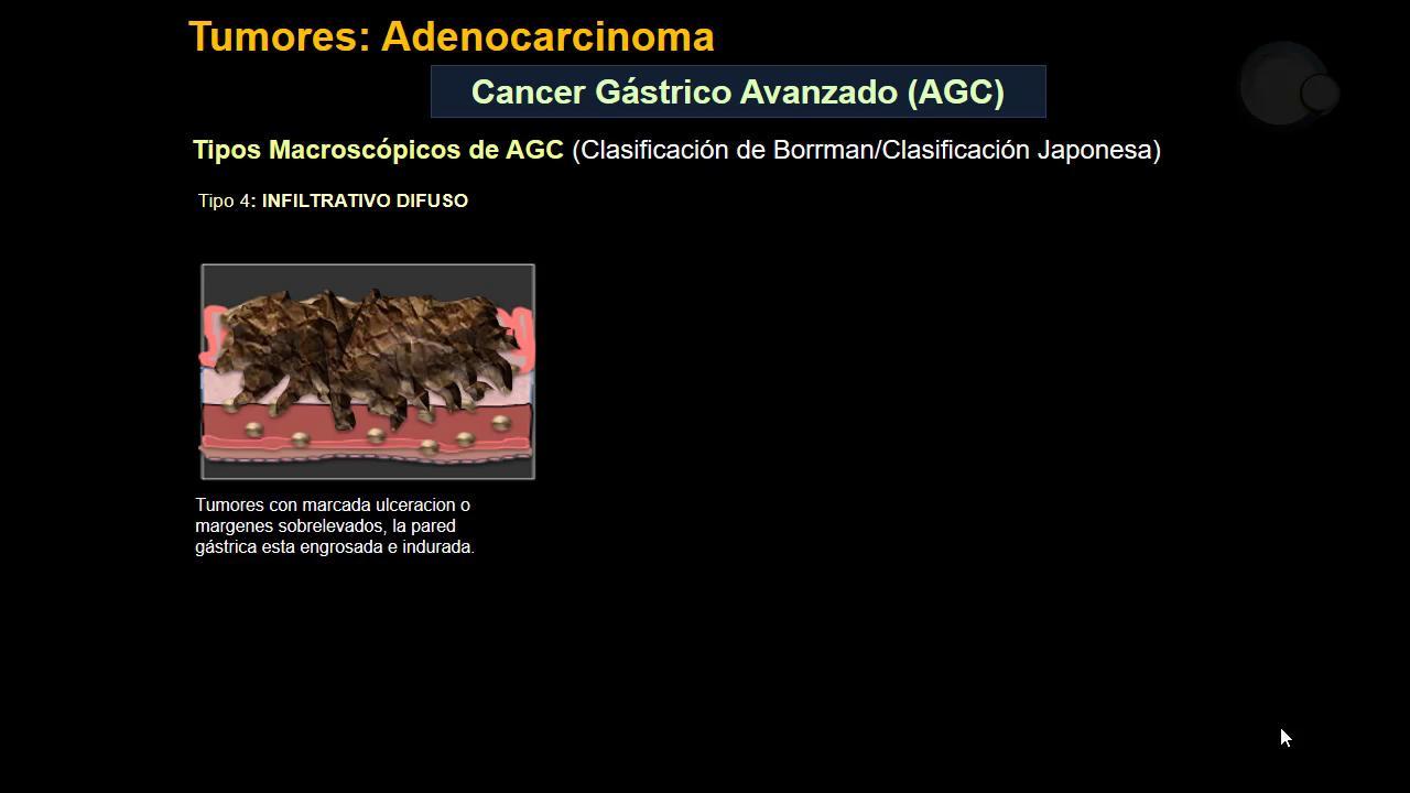 TCMD: Recorrido iconográfico de Cardias a Píloro