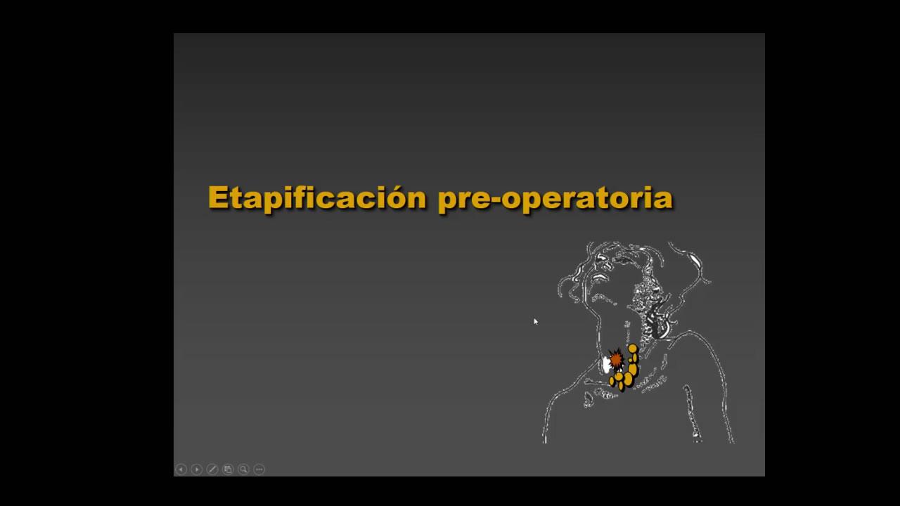Tiroides: Etapificación pre-operatoria