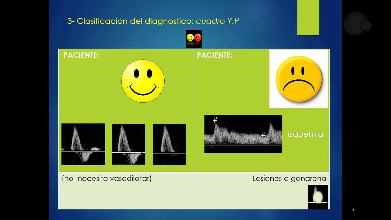 Importancia de la interpretación del Eco Doppler en la Enfermedad Vascular Periférica