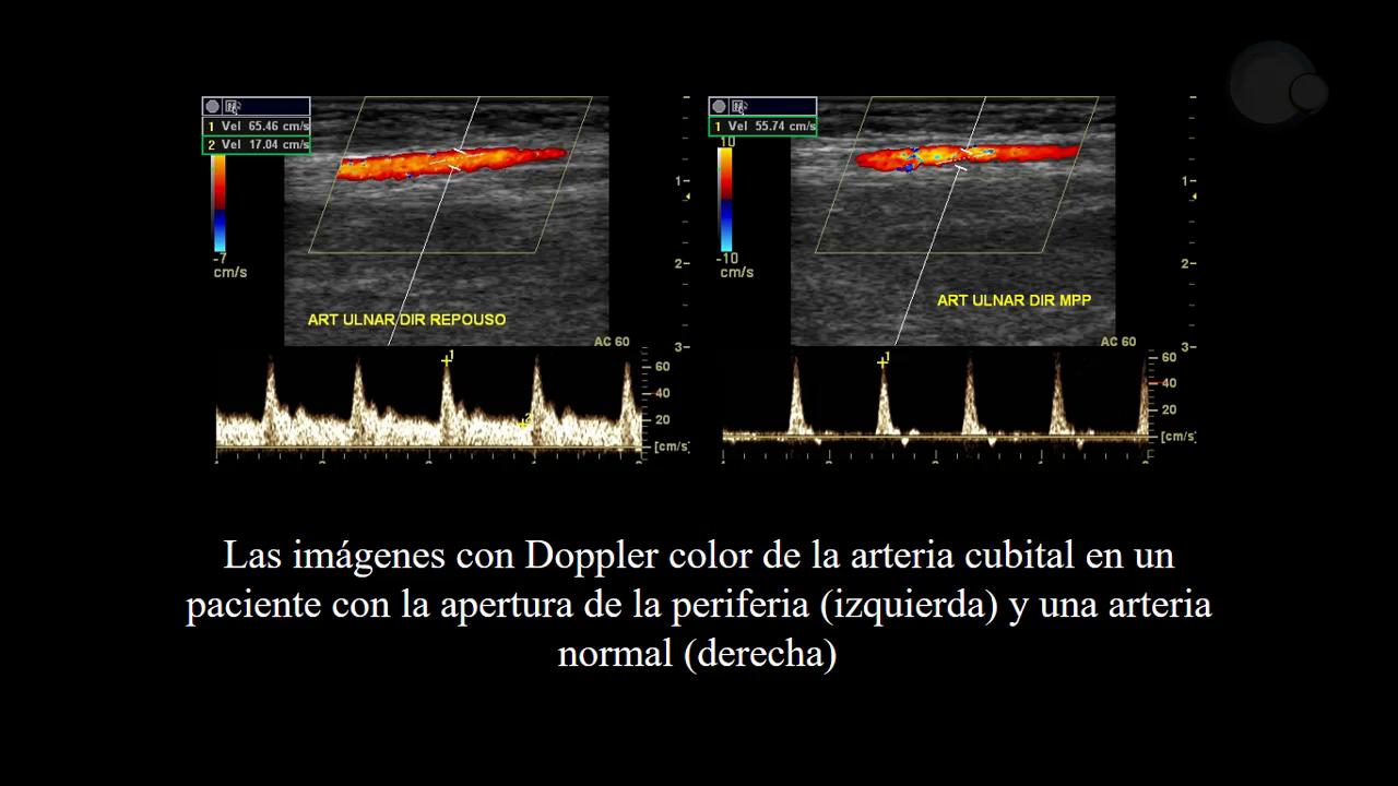 Estrecho cérvico-torácico: protocolo de evaluación doppler