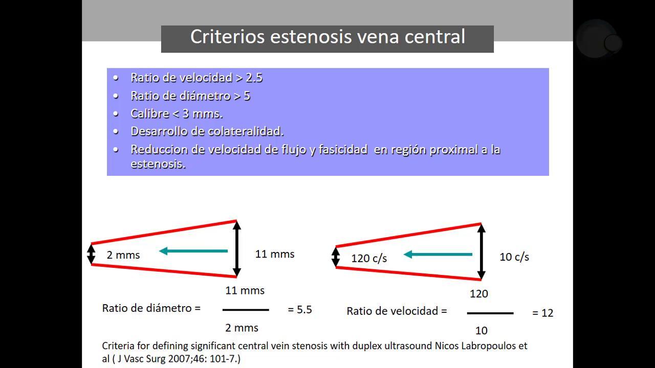 Maniobras y criterios ecográficos en Nutcracker, May-Thurner y otras compresiones