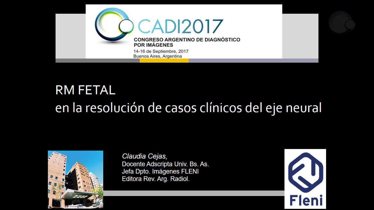 RM fetal en la resolución de casos clínicos del eje neural