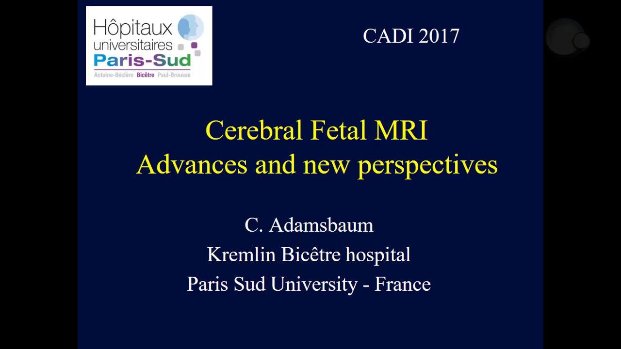 RMN cerebral fetal: avances y nuevas perspectivas
