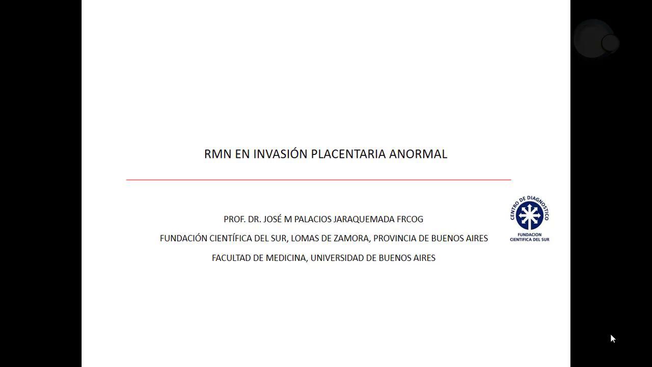 RMN en invasión placentaria anormal