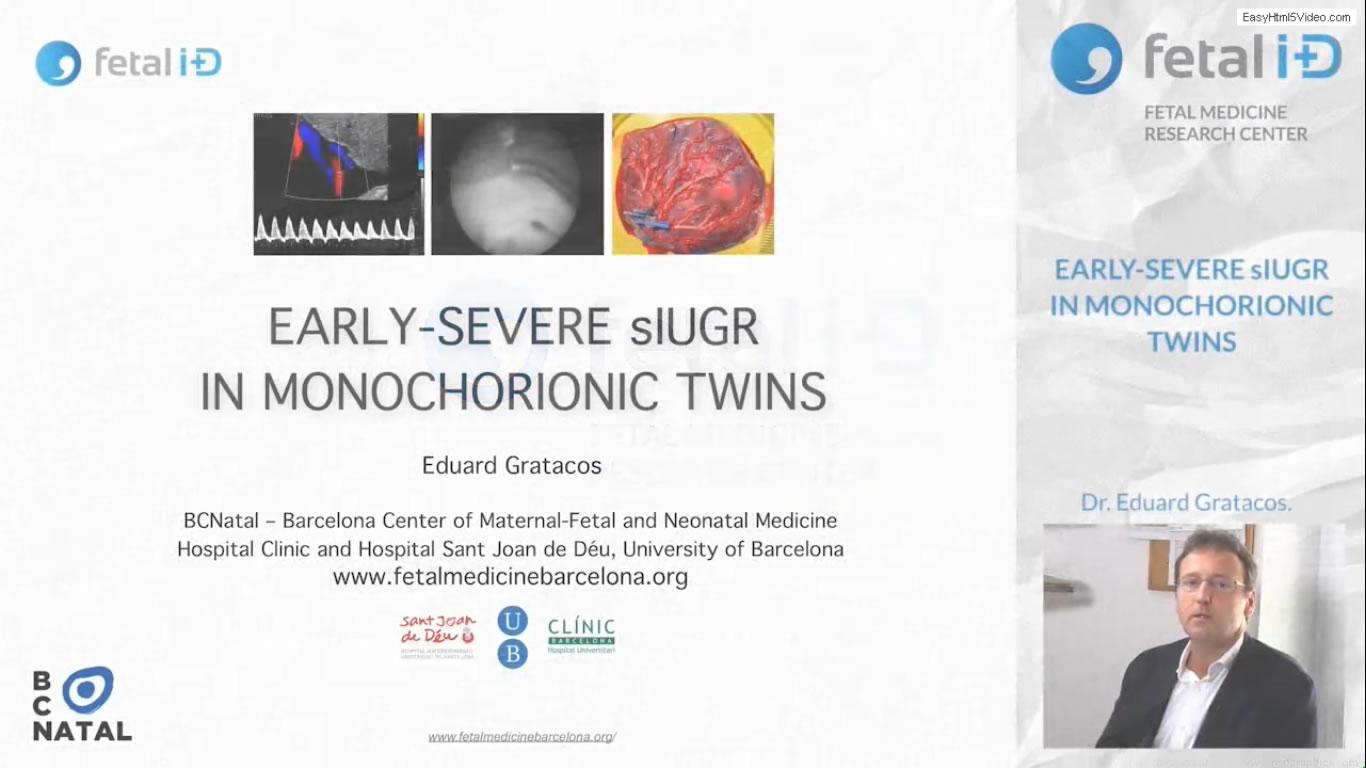 Retraso de crecimiento selectivo en gemelos monocoriales